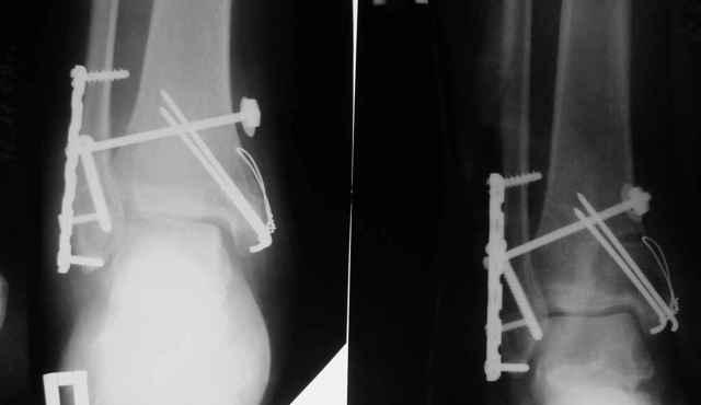 Перелом лодыжки без смещения: когда можно наступать на ногу