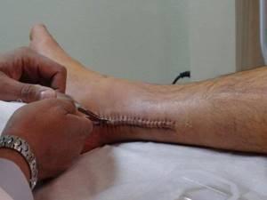 Разрыв ахиллова сухожилия: реабилитация после операции
