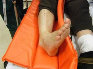 Вывих голеностопа: лечение дома, симптомы, голеностопного сустава