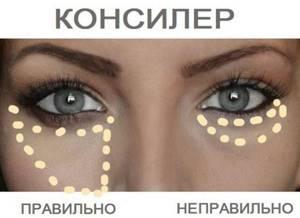 Как замазать синяки под глазами быстрые способы