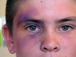 Онемело лицо после удара: чем лечить, что делать