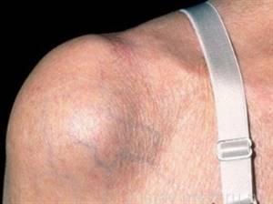 Растяжение связок плечевого сустава: как лечить в домашних условиях