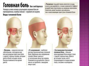 Боль в висках и лобной части головы: причины, головные