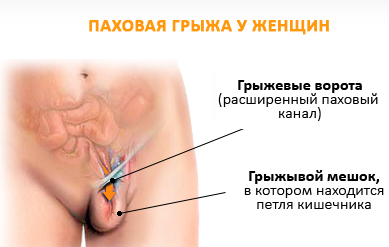 Паховая грыжа у женщин: симптомы, лечение, без операции, бандаж
