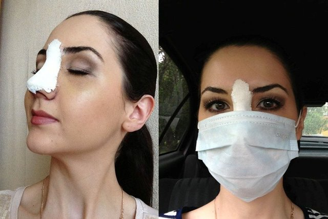 Как вправляют нос после перелома: вправление костей