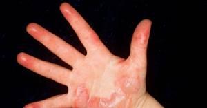 Ожог паром: первая помощь, в домашних условиях, что делать, лечение
