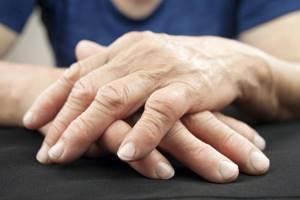 Ушиб мизинца на руке: как забинтовать, у ребенка