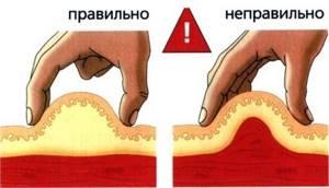 Как сделать укол самому себе: подкожный, в бедро, внутримышечно