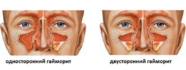 Давящая боль в голове: болит голова, как будто сдавливает череп