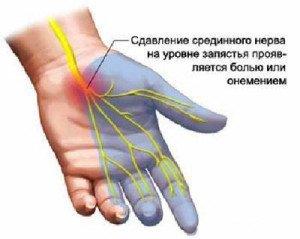 Немеет большой палец на левой ноге: причины, почему онемел