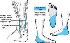Немеет правая нога: при ходьбе, покалывает, что делать